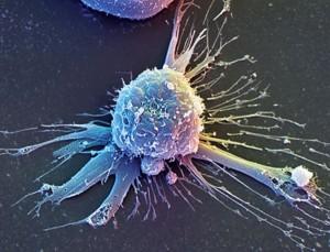 Чем опасны подтяжки лица стволовыми клетками