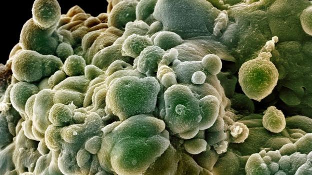 """Рак простаты могут распознавать с помощью """"электронного носа"""""""