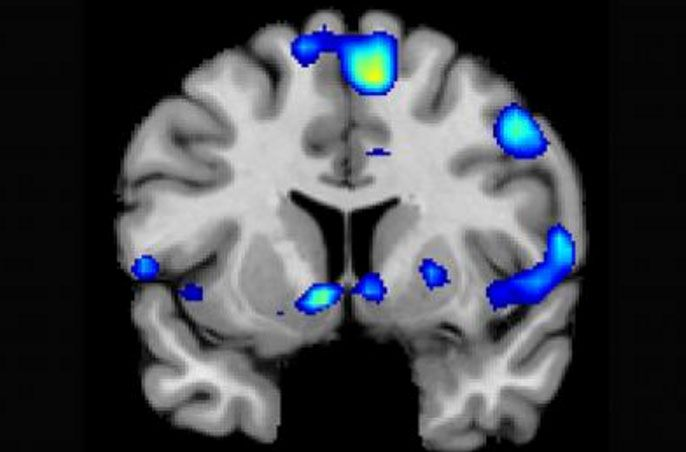 Духовный разум: как религиозные чувства отображаются в мозге?